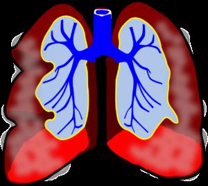 Invloed-van-vervuilde-lucht-op-gezondheid